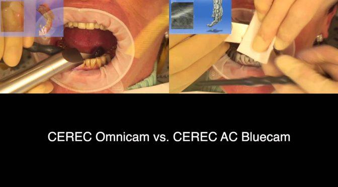 CEREC Bluecam ve CEREC Omnicam
